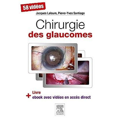 Chirurgie des glaucomes