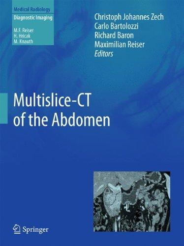 Multislice-CT of the Abdomen (Medical Radiology) (2012-04-28)