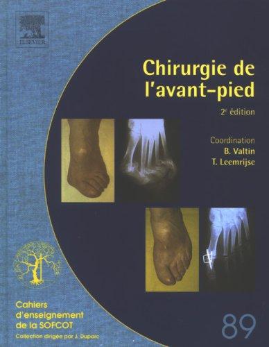 Chirurgie de l'Avant-pied (N89): 2E EDITION
