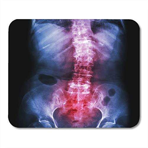 Computer Matte,Spondylose Und Skoliose Film X Ray Lendenwirbelsäule Wirbelsäule Zeigen Crooked Old Patient Healthcare Mauspad Matten 25Cmx30Cm