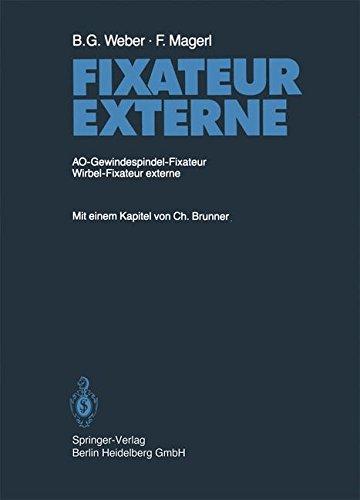 fixateur-externe-ao-gewindespindel-fixateur-wirbel-fixateur-externe
