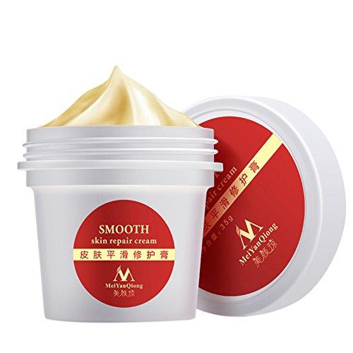 Stretch Marks Cream Befeuchtend Körpercreme Dehnungsstreifen Entfernung Creme für glatte Haut. Ideal zum Entfernen von Stretchmark, Slimming mark und Narben für Frauen und Männer