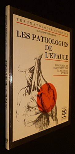 PATHOLOGIES DE L'EPAULE. Diagnostic et traitements