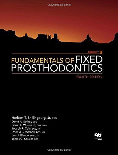 Fundamentals of Fixed Prosthodontics by Herbert T. Shillingburg (2012-03-30)