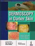 #8: Dermoscopy In Darker Skin