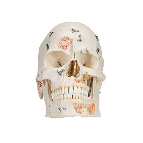 3B Scientific  A27 Modelo de anatomía humana Cráneo de demostración de Lujo, 10 Partes - 3B Smart Anatomy