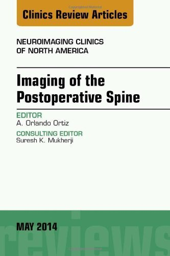 Imaging of the Postoperative Spine, An Issue of Neuroimaging Clinics, 1e (The Clinics: Radiology) 1st Edition by Ortiz MD, Orlando (2014) Hardcover