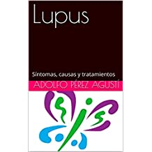 Lupus: Síntomas, causas y tratamientos (Tratamiento natural nº 73)