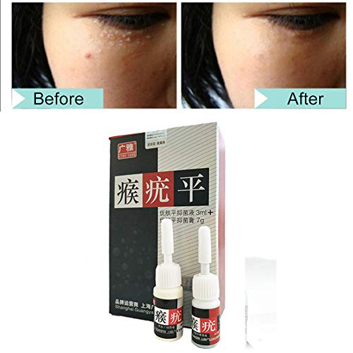 Ardorlove Mole & Skin Tag Removal Solution Kit Painless Mole Skin Dark Spot Removal Face Wart Tag Freckle Removal Cream