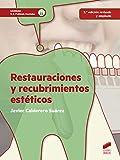 Restauraciones y recubrimientos estéticos (2.ª edición revisada y actualizada): 43 (Sanidad)