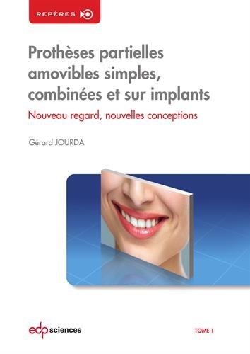 Prothèses partielles amovibles simples, combinées et sur implants : Tome 1, Nouveau regard, nouvelles conceptions