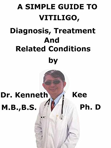 A  Simple  Guide  To  Vitiligo,  Diagnosis, Treatment  And Related Conditions (A Simple Guide to Medical Conditions) (English Edition)