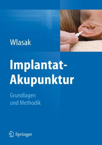 Implantat-Akupunktur: Grundlagen und Methodik