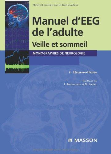 Manuel d'EEG de l'adulte - Veille et sommeil (Ancien prix éditeur : 57 euros)
