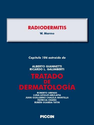 Capítulo 106 extraído de Tratado de Dermatología - RADIODERMITIS