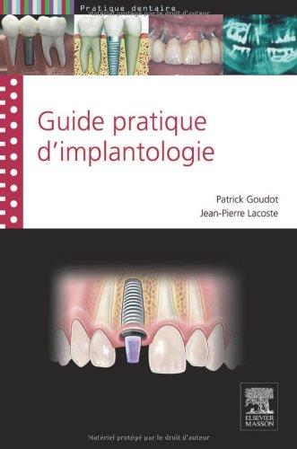 Guide pratique d'implantologie