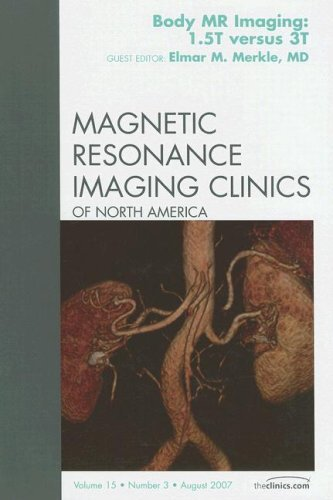 3T MR Imaging, An Issue of Magnetic Resonance Imaging Clinics, 1e (The Clinics: Radiology) by Elmar Merkle MD (2007-11-05)
