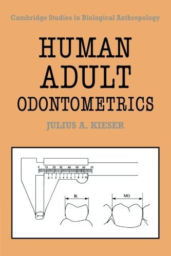 Human Adult Odontometrics: The Study of Variation in Adult Tooth Size (Cambridge Studies in Biological and Evolutionary Anthropology) 1st edition by Kieser, Julius A. (2008) Paperback