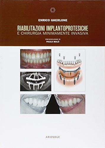 Riabilitazioni implantoprotesiche e chirurgia minimamente invasiva