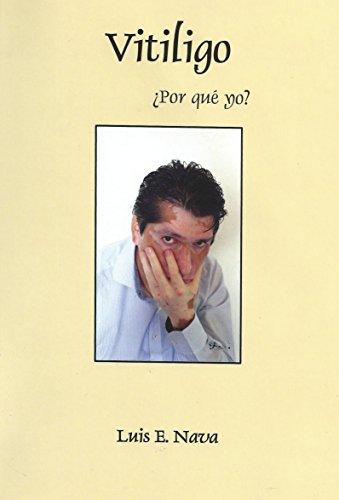 Vitiligo ¿Por que  yo ? por Luis Enrique Nava Matz