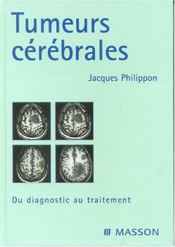 Tumeurs cérébrales : Du diagnostic au traitement