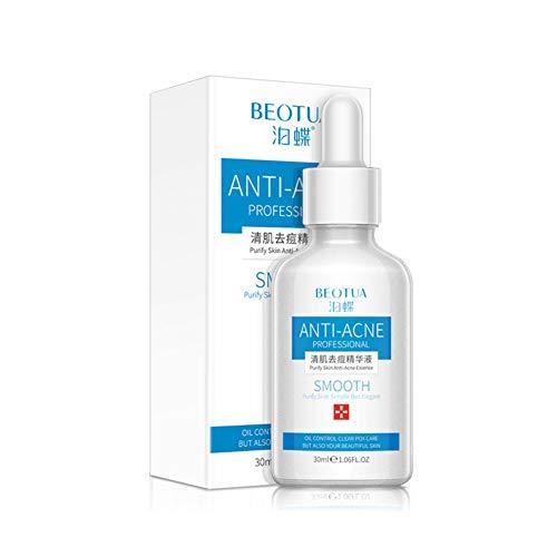 Sérum facial antiacné purificador de esencia para la piel, elimina el acné y encoge los poros e hidrata, hidratante y refrescante para la piel, control de aceite y reequilibrio de 30 ml