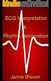ECG Interpretation & Rhythm Recognition