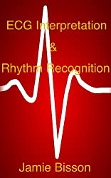 ECG Interpretation & Rhythm Recognition (English Edition)