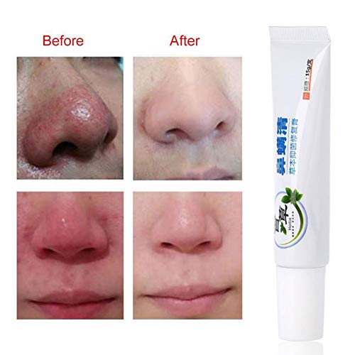 Rosacea Creme - Rosacea Treatment Skin Care Poren Produkte für Gesicht Rötung Relief, Entzündungen und Anti-Akne, feuchtigkeitsspendende, unterdrücken Bakterien und Juckreiz Creme -