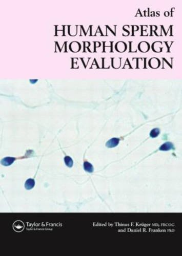 Atlas of Human Sperm Morphology Evaluation
