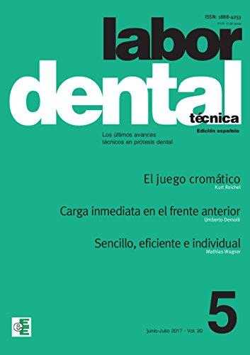 Labor Dental Técnica nº5 2017: nº 5 vol.20 por Varios Autores