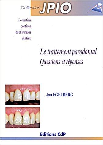 Le traitement parodontal : Questions et réponses