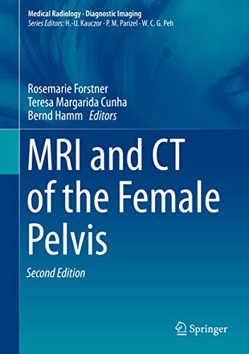 MRI and CT of the Female Pelvis (Diagnostic Imaging) (English Edition)