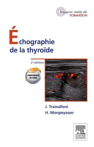 chographie-de-la-thyrode