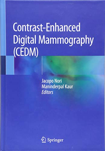 Contrast-Enhanced Digital Mammography (CEDM) (Digitale Radiologie)