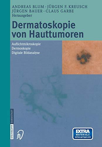 Dermatoskopie von Hauttumoren: Auflichtmikroskopie _ Dermoskopie _ Digitale Bildanalyse