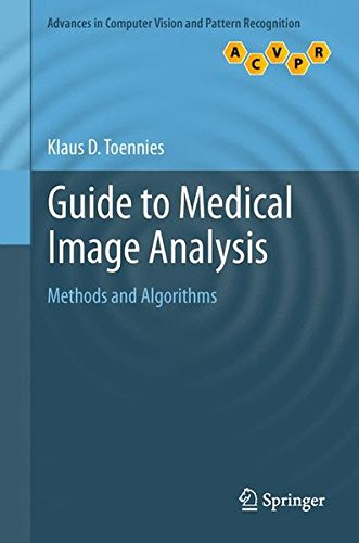 Preisvergleich Produktbild Guide to Medical Image Analysis: Methods and Algorithms (Advances in Computer Vision and Pattern Recognition)