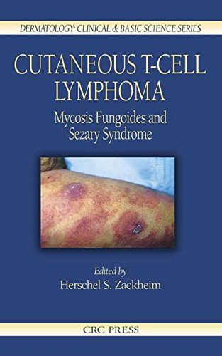 cutaneous-t-cell-lymphoma-mycosis-fungoides-and-saezary-syndrome-edited-by-herschel-s-zackheim-publi