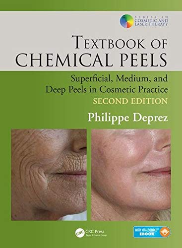 Textbook of Chemical Peels: Superficial, Medium, and Deep Peels in Cosmetic Practice (Series in Cosmetic and Laser Therapy) - Clinical Peel