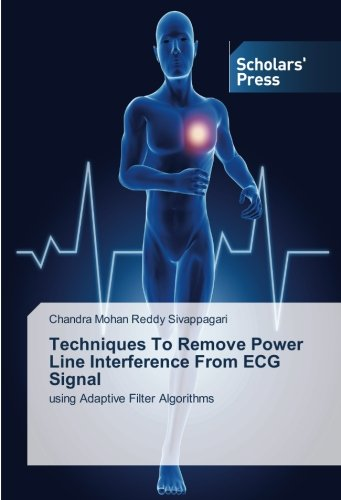 Techniques To Remove Power Line Interference From ECG Signal: using Adaptive Filter Algorithms (Line Filter Power)