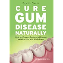 Cure Gum Disease Naturally: Heal Gingivitis and Periodontal Disease with Whole Foods by Ramiel Nagel (2015-03-20)