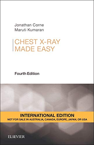 Chest  X-Ray Made Easy, International Edition