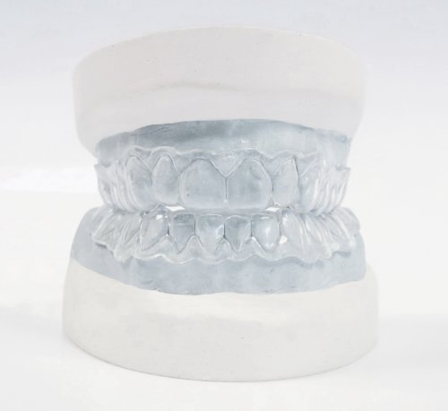 Teeth Whitening Dental Trays – Custom Made by Professionals Using A DIY Home Impression Kit (New improved longer lasting material)