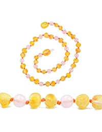 Genuine Amber Collar de ámbar báltico auténtico, sin Cuentas pulidas, Anudado Entre Perlas, tamaños de 30 a 36 cm