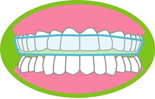 OVEO Bite Dentale Automodellante Per Bruxismo - Noturno Protezione