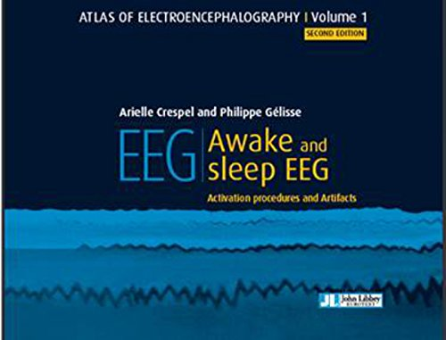 EEG - Awake and sleep EEG: Activation procedures and Artifacts
