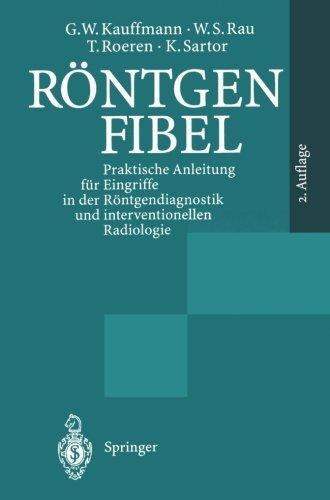 R????ntgenfibel: Praktische Anleitung f????r Eingriffe in der R????ntgendiagnostik und interventionellen Radiologie (German Edition) by G. W. Kauffmann (1995-01-01)