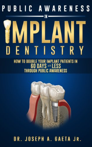 Public Awareness In Implant Dentistry: How To Double Your Implant Patients In 60 Days Or Less Through Public Awareness (English Edition)