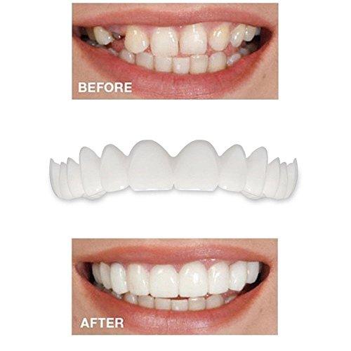 SMILEQ® 5 STÜCK Temporäre Lächeln Komfort Fit Kosmetische Zähne Prothesenzähne Top Cosmetic Veneer (Weiß) -