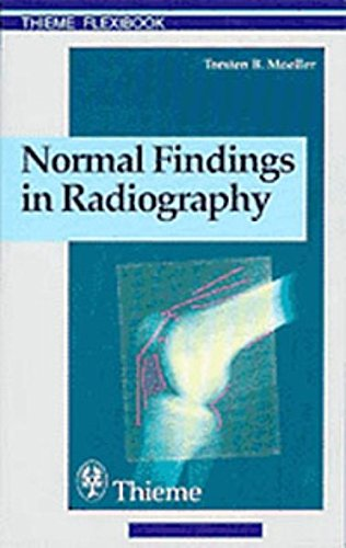 Normal Findings in Radiography: . Zus.-Arb.: Torsten B. Möller Translated by Terry Telger 190 Illustrations (Thieme Flexibook)